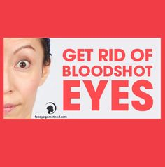 How do you take care of your eyes? In order to keep a youthful look, the eye should be well taken care of, internally and also externally. The following exercise works on the eyes. http://faceyogamethod.com/how-to-get-rid-of-bloodshot-eyes/
