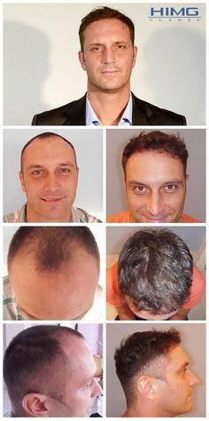 Transplantacia vlasov fue vysledky pred po fotografie istvan szebeni - PHAEYDE K. Hair Transplant Results, Fue Hair Transplant, Hair Fall Solution, Before After Photo, Stop Hair Loss, Falling Down, Fall Hair, Skirt Outfits, Budapest