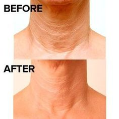 3 Facial Exercises For Sagging Neck: Keep Your Neck Toned By Eliminating Turkey Neck