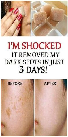 I'm SHOCKED It Removed My Dark Spots In 3 Days, Potato & Lemon Juice Ice cubes – 18aims