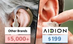 Hearing Enhancers Revolution in The USA New Device Slashes Prices by over 90% Hearing Problems, People In Need, Sale Promotion, Hearing Aids, The Millions, Usa News, How To Introduce Yourself, Revolution, Valuable Pennies