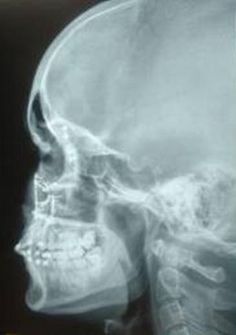 X-Rays of Alexandrea's facial bones with multiple fractures. Survivor Stories ~ Alexandrea Christianson, a survivor of domestic violence ❤Photog [◎°] Xray❤ Verbal Abuse, Facial Bones, Shadow Of The Almighty, Multiple Myeloma, Under The Shadow, Survival Quotes, How To Become Rich, Abusive Relationship