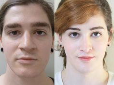 Transgender woman before and after surgery