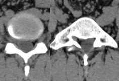 Neurorradiología caso problema nº 4 https://laneuroimagen.blogspot.com.es/2017/04/neurorradiologia-caso-problema-n-4.html #neurorradiología #neuroimagen #columna #TC #caso problema https://flic.kr/p/SnVorq   Neurorradiología caso problema nº 4