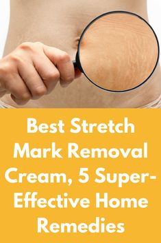Best Stretch Mark Removal Cream, 5 Super-Effective Home Remedies Best Stretch Mark Removal, Stretch Marks On Thighs, Age Spot Removal, Natural Beauty Remedies, Scaly Skin, Best Stretches, Good Skin, Home Remedies, Suddenly