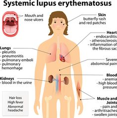 Lupus complications