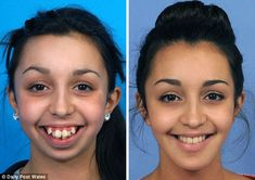 Before and after shots show woman's jaw operation transformation - A woman whose jawbones wouldn't grow has had her life changed by pioneering surgery. Ellie Jones, was born with a congenital facial deformi. Dental Braces, Teeth Braces, Dental Surgery, Braces Before And After, Brace Face, Operation, Natural Teeth Whitening, Dental Assistant, Dental Hygiene School
