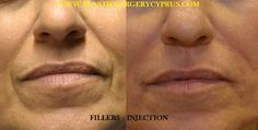 Immediate result after injection of 1,5 cc of Hyaluronic acid. http://www.plasticsurgery4cyprus.com/…/non-surgical…/fillers