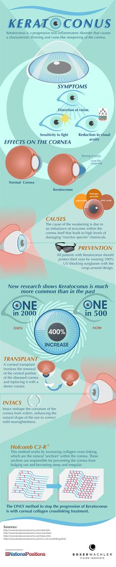 Keratoconus - Keratoconus is a non-inflammatory disorder that causes a characteristic thinning and cone-like steepening of the cornea.   - sponsored