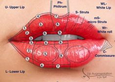 Lip Codes for lip augmentation - Another! Dermal Fillers Lips, Facial Fillers, Botox Fillers, Lip Fillers, Cosmetic Treatments, Skin Treatments, Facial Esthetics, Relleno Facial, Facial Anatomy