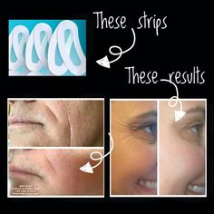 Rodan + Fields Acute Care Patches. It works. Let's talk! #beautifulskinisin #AcuteCare christyc.myrandf.com