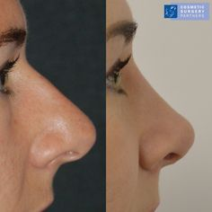 Rhinoplasty before and after photos 💙 please call 020 7486 6778 for enquiries #rhinoplastylondon #rhinoplastybeforeandafter #cosmeticsyrgerypartners #plasticsurgery #plasticsurgeon #surgeon #facialplastics #surgery #london #facialplasticsurgery #bestfornoses #cosmeticsurgery #nosejob #londonharleystreet #doctors #rhinoplastysurgeon #londonplasticsurgeon Rhinoplasty Surgery, Nose Surgery, Facial Cosmetic Surgery, Nose Reshaping, Types Of Facials, Rhinoplasty Before And After, Nose Shapes, True Art