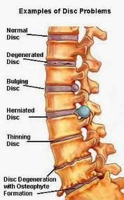 I have back pain EVERY day of my life and doctor say it will only get worst