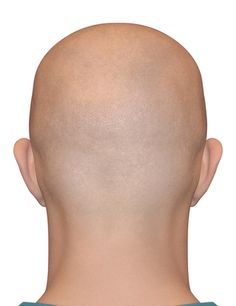 The Drs: ABCDE Signs of Melanoma & Man Found Cancer After Shaving Head