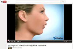 STUDIO DENTISTICO BALESTRO: Sindrome della faccia lunga. Correzione chirurgica...