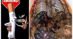 SMOKERS, ATTENTION: You can remove all the toxins from the body in 3 days: The method that removes toxins from the walls of the lungs, prevents cancer, ejects fat and excess water! (RECIPE)