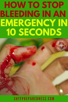 How To Stop Bleeding In An Emergency In 10 Seconds Knowing how to stop bleeding quickly is a critical survival skill! Related Survival Hacks That Could Save Your Life. Survival Life Hacks, Survival Food, Survival Prepping, Survival Skills, Survival Quotes, Outdoor Survival, Survival Supplies, Camping Survival, Emergency First Aid
