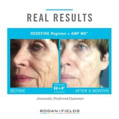 Before and After REDEFINE Regimen + Amp MD