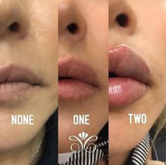 Natural Lip Plumper, Natural Lips, Dermal Fillers, Lip Fillers, Fake Lips, Facial Aesthetics, Belly Tattoos, Lip Augmentation, Botox Injections