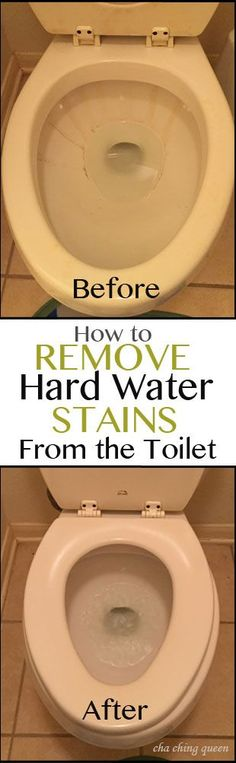 How to Remove Hard Water Toilet Bowl Stains Easily and Quickly – Cha Ching Queen