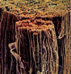 Myelin sheath, myelinated fibers - A fatty, axon-enwrapping sheath that serves to speed up neural conduction. This is attacked and unraveled by one's own immune system with multiple sclerosis.