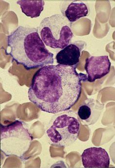 Chronic Myelocytic Leukemia