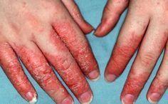 Mutfağınızdaki Bir Sıvı İle Egzama Nasıl Tedavi Edilir! İnanılmaz Etkili Sonuçlar