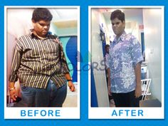 Fast Weight Loss Before Heart Surgery