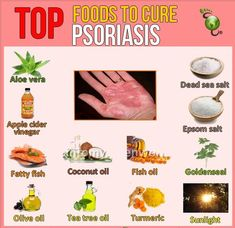 Natural Remedies for Psoriasis.What is Psoriasis? Causes and Some Natural Remedies For Psoriasis.Natural Remedies for Psoriasis - All You Need to Know Plaque Psoriasis, Psoriasis Remedies, Diet For Psoriasis, Nummular Eczema, Eczema Symptoms, Eczema Relief, Natural Treatments, Natural Cures, Natural Remedies