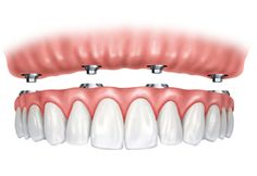 These dentures are similar to dental implants. They attach more securely to the gums, but they are still removable for cleaning and care. It makes for longer, more comfortable daily use.