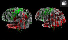 Scientists create atlas of the human brain
