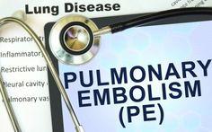 Προσοχή! Τα σημάδια που προειδοποιούν για πνευμονική εμβολή - http://www.daily-news.gr/health/prosochi-ta-simadia-pou-proidopioun-gia-pnevmoniki-emvoli/