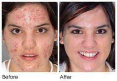 How-To-Get-Rid-Of-Spot-Scars
