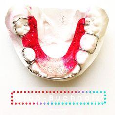 Wir empfehlen: Mit 7 Jahren zum Kieferorthopäden! We recommend an orthodontic screening at age 7  #brace of the #day #zahnspange #red  #orthodontics #orthodontist #kieferorthopädie #kieferorthopäde #kfobabai #kinder #hannover #ortodoncia #ortodontia #dental #dentistry #dentist #dentista  #dentallife #dentalassistant # #xmas #christmas #glitter #weihnachten #white #quote #glitzer #bicolor #rot #rouge