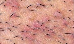 What is ingrown hair? Ingrown hair is a condition where the hair grows sideways into the skin. The condition is widespread in people who have curly or coarse hair. DIY Home Remedy For Ingrown Hair. Ingrown Hair Remedies, Ingrown Hair Removal, Beauty Care, Beauty Skin, Hair Beauty, Beauty Secrets, Beauty Hacks, Razor Bumps, Body Hacks