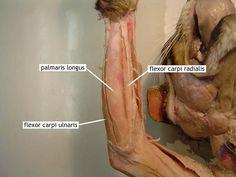 Flexor Carpi Radialis + Flexor Carpi Ulnaris + Palmaris Longus