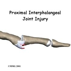 Volar PIP joint dislocation: safe position for splinting is PIP joint extension.