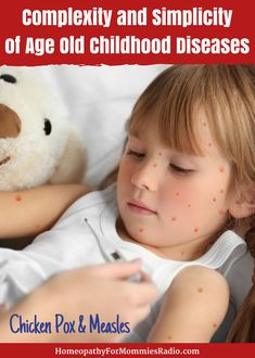 Chicken Pox and Measles - The Complexity and Simplicity of Age Old Childhood Diseases - Ultimate Homeschool Podcast Network Chicken Pox, Cold Sore, Child Life, Alternative Health, Kids Health, Pain Relief, Natural Health, Health And Wellness, Activities For Kids