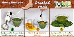 Cracked Heel Home Remedy.