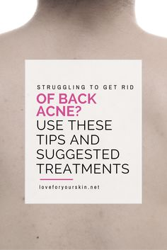 Are you having problems with back acne? If you are, here is a great list of tips that you can use to combat this issue.