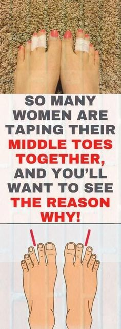 So Many Women Are Taping Their Middle Toes Together, And You'll Want To See The Reason Why! - Health and Wellness Tips Health And Wellness, Health Tips, Health Fitness, Health Facts, Fitness Tips, Health Care, Wellness Quotes, Health Articles, Health Quotes
