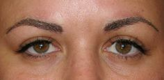 After permanent makeup, eyebrows.