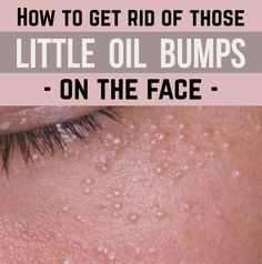 How to get rid of those little oil bumps on the face - BestWomenTips.com