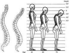 Cara Mengobati Osteoporosis >> Ingin Sembuh dari penyakit osteoporosis ? Bagi anda yang saat ini mengalami keluhan penyakit osteoporosis dan sedang mencari solusi penyembuhan osteoporosis secara alami dan aman, jangan pernah khawatir. Kami menghadirkan informasi lengkap pengobatan untuk penyakit osteoporosis dengan metode penyembuhan secara alami, yaitu Ace Max's.