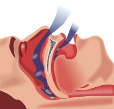 Wikipedia answers what Sleep apnea is. http://en.wikipedia.org/wiki/Sleep_apnea
