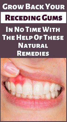 Heal Cavities, How To Prevent Cavities, Gum Health, Oral Health, Health Tips, Health Care, Grow Back Receding Gums, Swollen Gum, Tooth Sensitivity