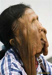 The melting face disease. A rare form of neurofibromatosis, an incurable genetic disease. Human Oddities, Bizarre, Medical Science, Medical History, Human Condition, Medical Conditions, Human Body, Scary, Weird
