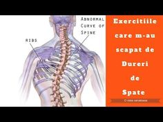 Sciatica, Back Pain, Medical, Gym, Youtube, Health, Sport, Exercises, Strawberry Fruit