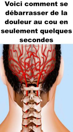 Pain Remedies 7 Effective Ways to Get Rid of Neck Pain - Relationship Habits Health And Beauty, Health And Wellness, Health Tips, Health Fitness, Health Care, Women's Health, Bone Health, Neck Exercises, Neck Stretches