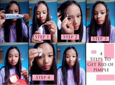 (2) LinkedIn Pimple Solution, How To Get Rid Of Pimples, Beauty Routines, Everyday Fashion, Reading, Blog, Watch, Twitter, Link